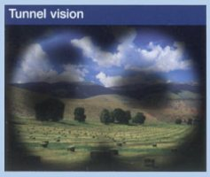 tunnel_vision